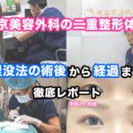 東京美容外科の二重整形体験!埋没法の術後から経過まで徹底レポート