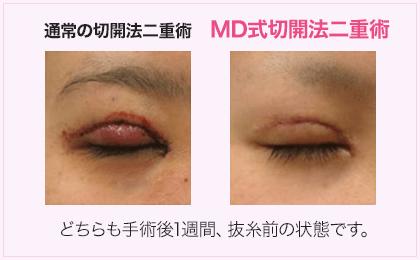 湘南美容クリニックMD式切開法の症例写真